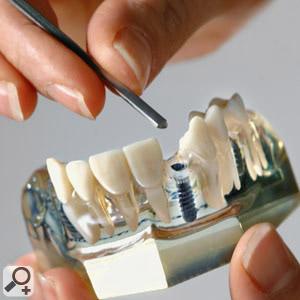 Oberkiefer-Modell mit Implantat. Zahnarzt-Praxis Peter Guntermann, Olpe. Foto © Dietrich Hackenberg