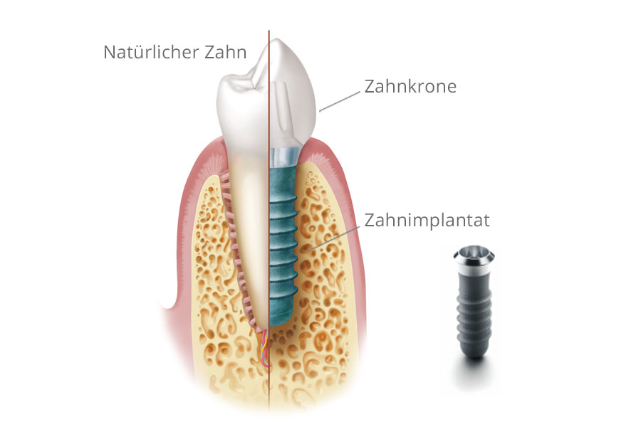 Querschnitt: Natürlicher Zahn und Implantat mit Krone. Grafik mit Materialien © Institut Straumann AG